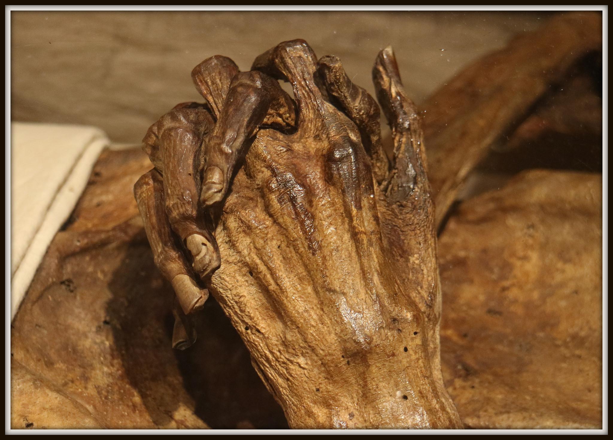 The Hands of Ritter Kahlbutz by Rolf Brecher.